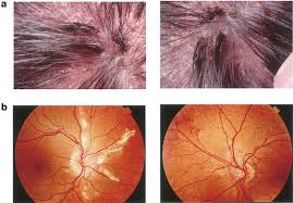 Fundus Photographs Showing Bilateral Angioid Streaks With A Mottled Appearance Peau Dorange Of The Fundi Superonasal Quadrant