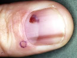 examination of the nails