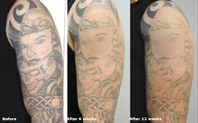 Laser Tattoo Removal Canada JCS Beforeandafter Session2 12weeks
