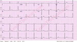Sinus Bradycardia ECG 3