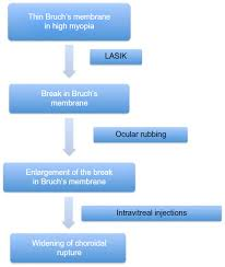 Figure 7 Proposed Pathophysiology Of Lacquer Crack Formation And Expansion In The Current Case Abbreviation LASIK Laser Situ Keratomileusis