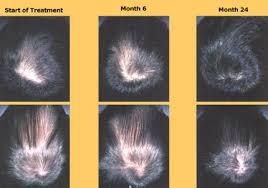 propecia 6 month shed amoxicilline sinusite