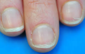 Toenail Separated From Nail Bed by Nail Abnormalities A Visual Guide Health Tools Nhs Choices