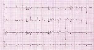 Atrial Fibrillation AF • LITFL ECG Library
