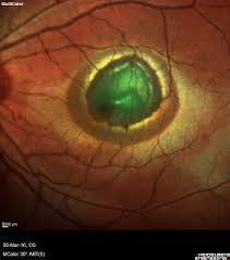 The Area Of Retinal Elevation Here Subretinal Haem Causes Absorption And Reduced Reflectance In IR Image Corresponding Green Color Shift