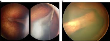 Radial Retinal Folds In FEVR A Fundus Image Of The Left Eye 1 Year Old Baby Girl With Showing Fold Towards An Area Fibrosis