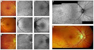 Near Infrared Reflectance Imaging And 488 Nm Fundus Autofluorescence In Pseudoxanthoma Elasticum Angioid Streaks Peau Dorange Are Best Most