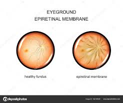 Vector Illustration Of The Fundus Epiretinal Membrane By Artemida Psy