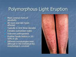 Dermatoses Resulting from Physical Factors ppt video online