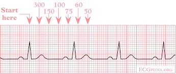 rr interval normal range normal dailyrounds