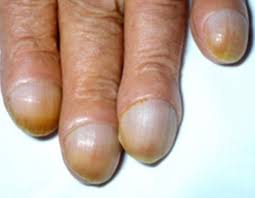 Nail Bed Melanoma by Essex Beautician Spots Client U0027s Nail Stripe As Skin Cancer Daily