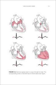 The Haywire Heart By Dr John Mandrola Lennard Zinn And Chris Case Illustration