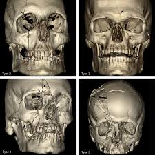 Orbital Floor Fracture Icd 9 by A Novel Classification Of Frontal Bone Fractures The Prognostic