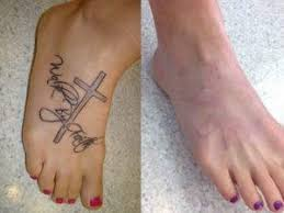 Here Is An Image That Can Provide You With The Before And After Results To Get More Detailed Knowledge On Tattoo Removing Methods