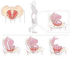 High Tone Pelvic Floor Dysfunction Exercises by Pelvic Floor Dysfunction Is An Issue That We Rarely Discuss In The