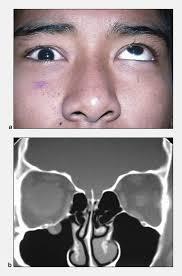 Orbital Floor Fracture Treatment by Orbital Trauma Little Rock Eye Socket Fracture Arkansas