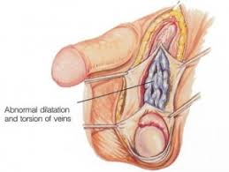 Muscles Of The Pelvic Floor Male by Pelvic Congestion Syndrome Physiopedia
