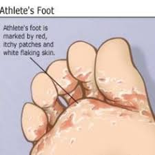 Natural Remedy For Athlete s Foot
