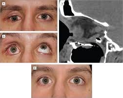 Orbital Floor Fracture Treatment by Safe Repair Of Orbital Floor Fractures Oculoplastic Surgery