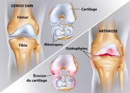 arthrose du genou clinique du mousseau