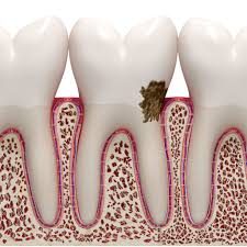 Receding Nail Bed by 4 Signs You Have Gum Disease U0026 What To Do About It