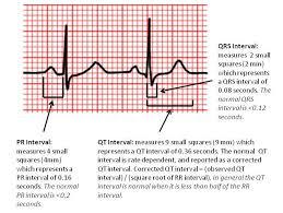 rr interval normal range step 2 measure important intervals