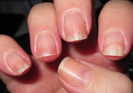 ten penny nails update nails and rosehip seed oil