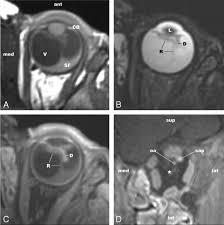 Retinal Dysplasia Mimicking Intraocular Tumor MR Imaging Findings