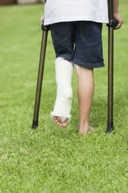 How to Exercise With a Broken Tibia & Fibula