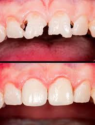 Dental Bonding – Aden Dental