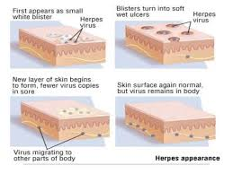 Viral Shedding Herpes Definition by Herpes Simplex