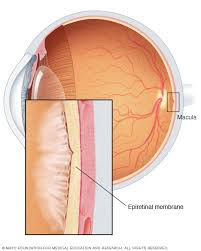 Illustration Of Epiretinal Membrane