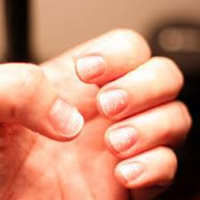 White Spots On Nail Beds by What Do Nail Problems Mean For Your Health Greatist