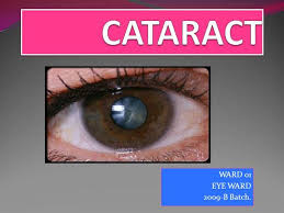 Christmas Tree Cataract Myotonic Dystrophy by 6 Cataract Authorstream