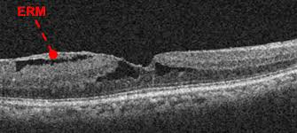 Oct Of Epiretinal Membrane