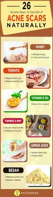 logiciel de cr饌tion de cuisine gratuit cicatrice vegetale synonyme