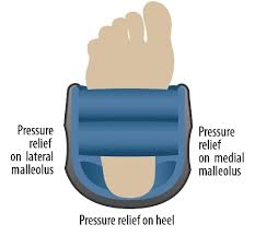 ventopedic ankle heel protector prevents heel ulcers