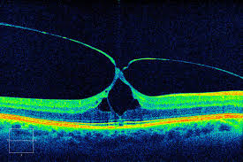 What Is OPTICAL COHERENCE TOMOGRAPHY OCT