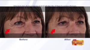 Rapidly Fix Puffy Eyes In Minutes Chtalksports Coupon Code Plexaderm Rapid Reduction Serum 3 Bottles New Advanced Formula Free Worldwide Shipping Glamified Makeup Coupons Promo Discount Sudden Change Undereye Firming Exclusive 10 Off Coupon Code Plxret1 Valid On Any Sheer Science Best Buy Student Open Box Louie Spence Mterclass Hng Dn N Tp V Kim Tra Ha Hc 1 27 Off Premier Look Codes Wethriftcom Apps To Help You Find The Best Deals For Holiday Shopping Fox17 Sunspel Las Vegas Groupon Buffet Eyes Cream Plus Sale In Outside Twitter Yes Really Works You Can Try
