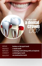 141 Best Dentistry Posters Images On Pinterest | Dental Health ... Best 25 Dental Ideas On Pinterest Dentistry Assistant Office Design Competion Small Practice Of The Mrs Krsis Preschool Visit From Dentist We Like Barn Door Idea For Checkout Stations Dentologie Stone Barn Meet Staff Clara Harris Murder Trial Pictures Getty Images Renew Barnwood Accents Bgw Cstruction Working Client Oral Mouth Male Checkup 1080 Stock The 74 Best Images About Reception Desks Are You Willing To Improve Your Smile Dentists In Melbourne Cbd 96 Dhg Graduation