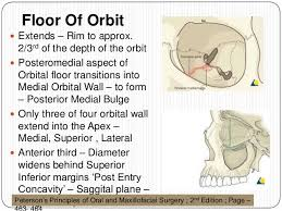 Fracture Orbital Floor Treatment by Orbital Fractures