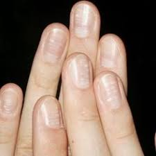 Receding Nail Bed by The Nails Have It Health Talk Fungal Infection And Mineral