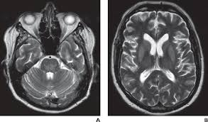 Toxic And Acquired Metabolic Encephalopathies MRI Appearance