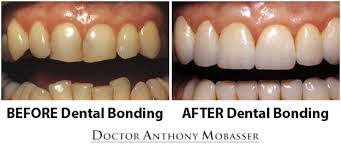 Dental Bonding Tooth and Teeth Bonding in Los Angeles CA