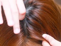 Hair Color And Lice Choice Image Hair Coloring Ideas
