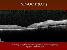 11 SD OCT OD Image Of Right Eye Demonstrating Elevation Corresponding To Large Superficial Cotton Wool Spot