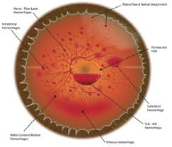 Figure 2 Illustration Summarizing Retinal Findings Seen In Patients With AHT
