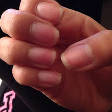 Receding Nail Bed by Receding Fingernail Bed Images Reverse Search
