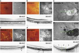 SD OCT Scans Through The Lacquer Cracks In Four Patients With Highly Myopic Eyes B E And One Emmetropic Eye Control A