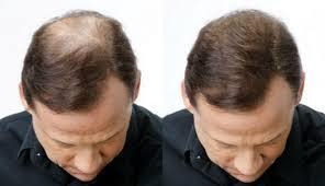 Cara Menumbuhkan Rambut Botak Secara Alami